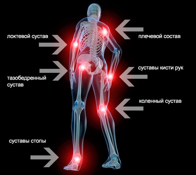 a térd gonartrosisának hatékony kezelése 2 fokkal