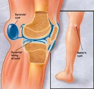 térdízületi fájdalom és kezelési okok)