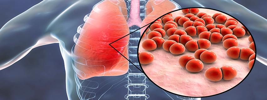 a tipusú tüdőgyulladás kezelése)