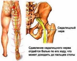 fájó láb, miközben sétál a bokaízületben)