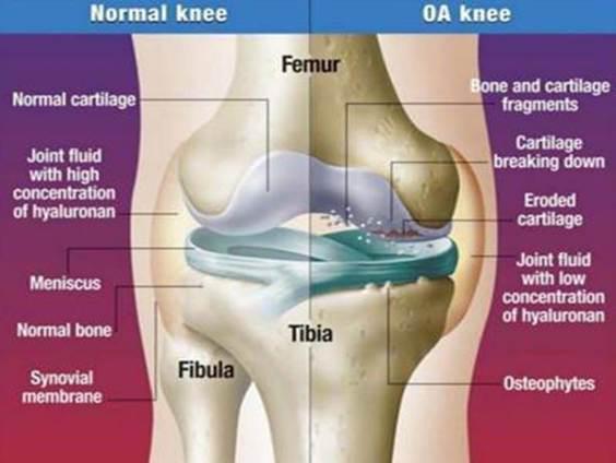 artrózis kezelése 2-3 fokon)