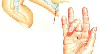 ujjízület duzzanat fenyőtobozok ízületi kezelésre