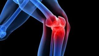 artrózis gyógyítása