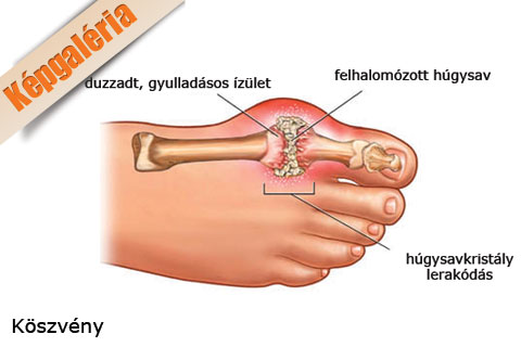 fájdalom nagy lábujj ízület)