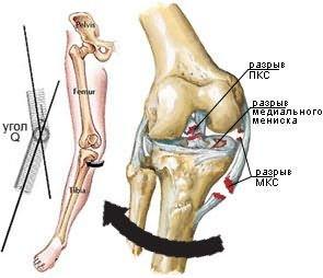 a vállízület ligamentumainak károsodása)