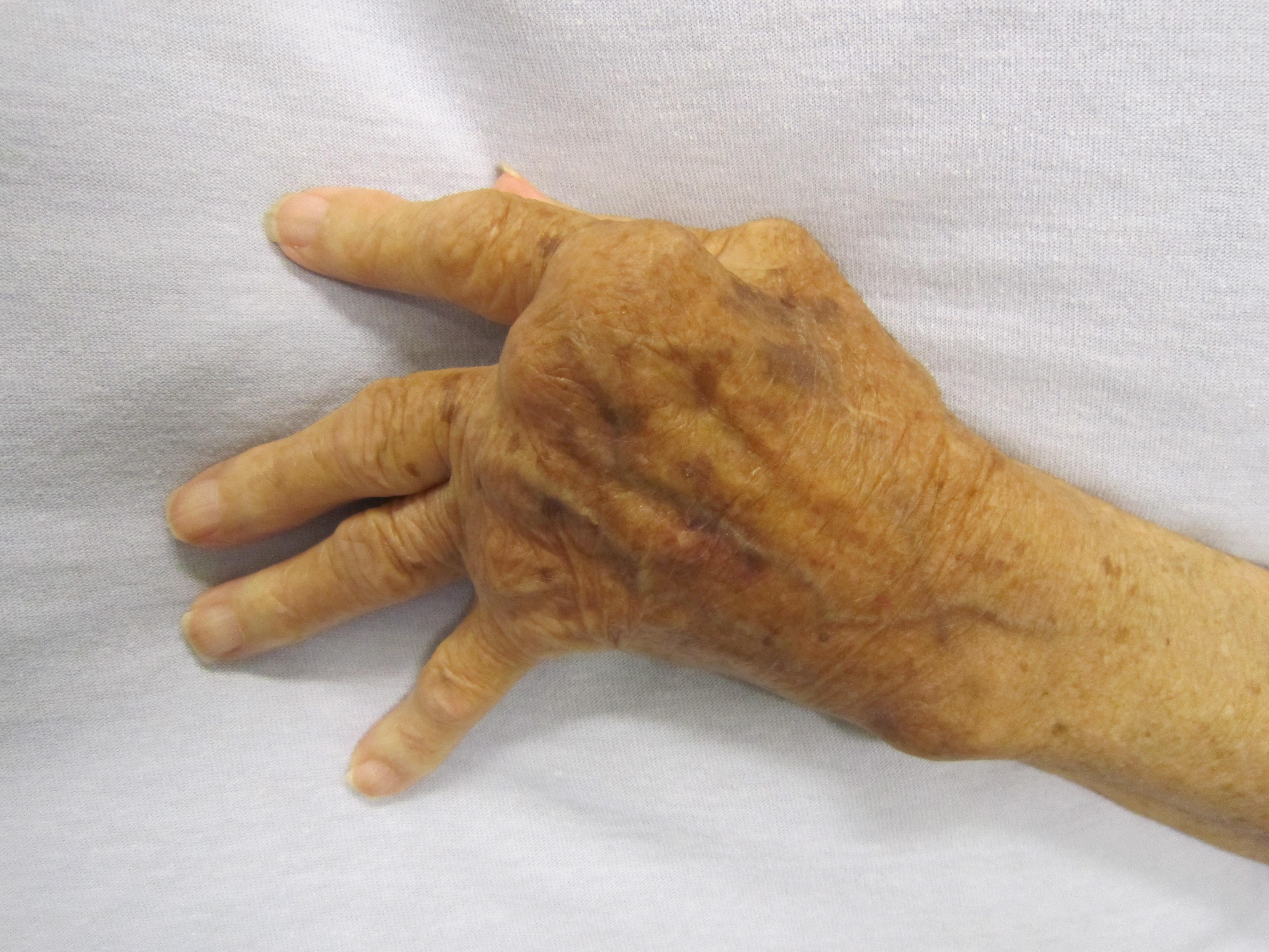 rheumatoid arthritis ízületek kivételek