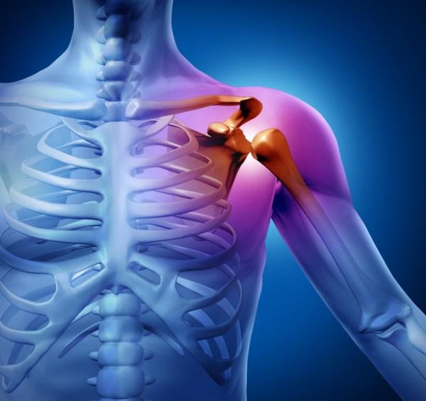 autoimmun arthritis hund a térd reumás ízületi gyulladásának gyógyszeres kezelése