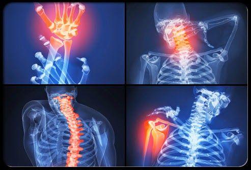 Gyakori gyulladásos betegség növeli a szívinfarktus és a stroke