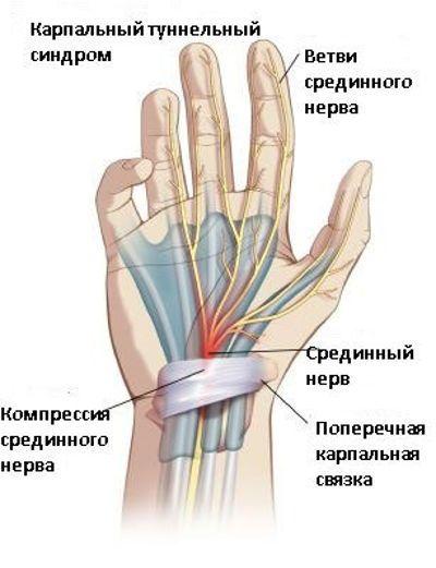 deformáló artrózis a kezek kezelésében)
