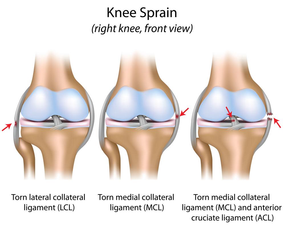 Dr. Seregi Antal   Ortopédia   Elülső kereszteződőszalag szakadás
