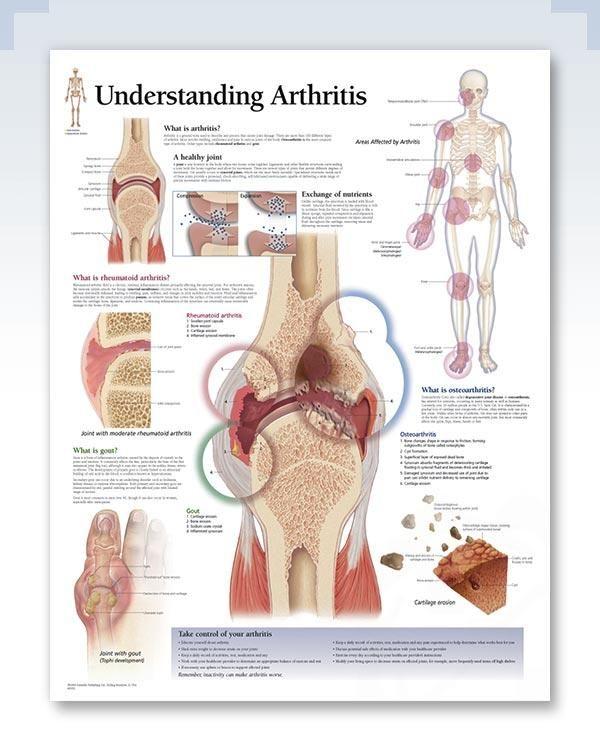 emberi kézbetegség, rheumatoid arthritis