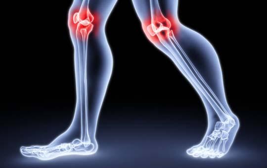 térd szinovitisz deformáló artrózisa