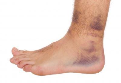 bokaízület a törés után fáj