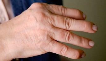 az ujjak interfalangeális ízületei fájnak)