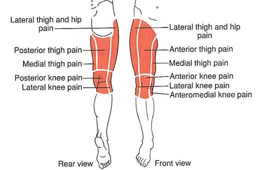 csípőpótlás fájdalma)