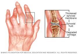 a kötőszövet nem specifikus gyulladása rheuma arthritis finger