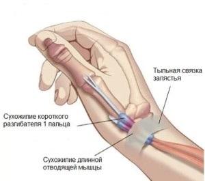 csukló styloiditis tünetei és kezelése)