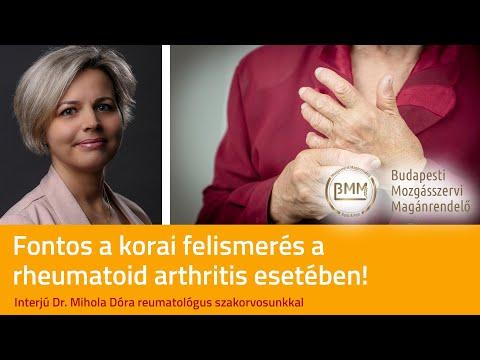 hogyan lehet gyorsan kezelni a rheumatoid arthritis