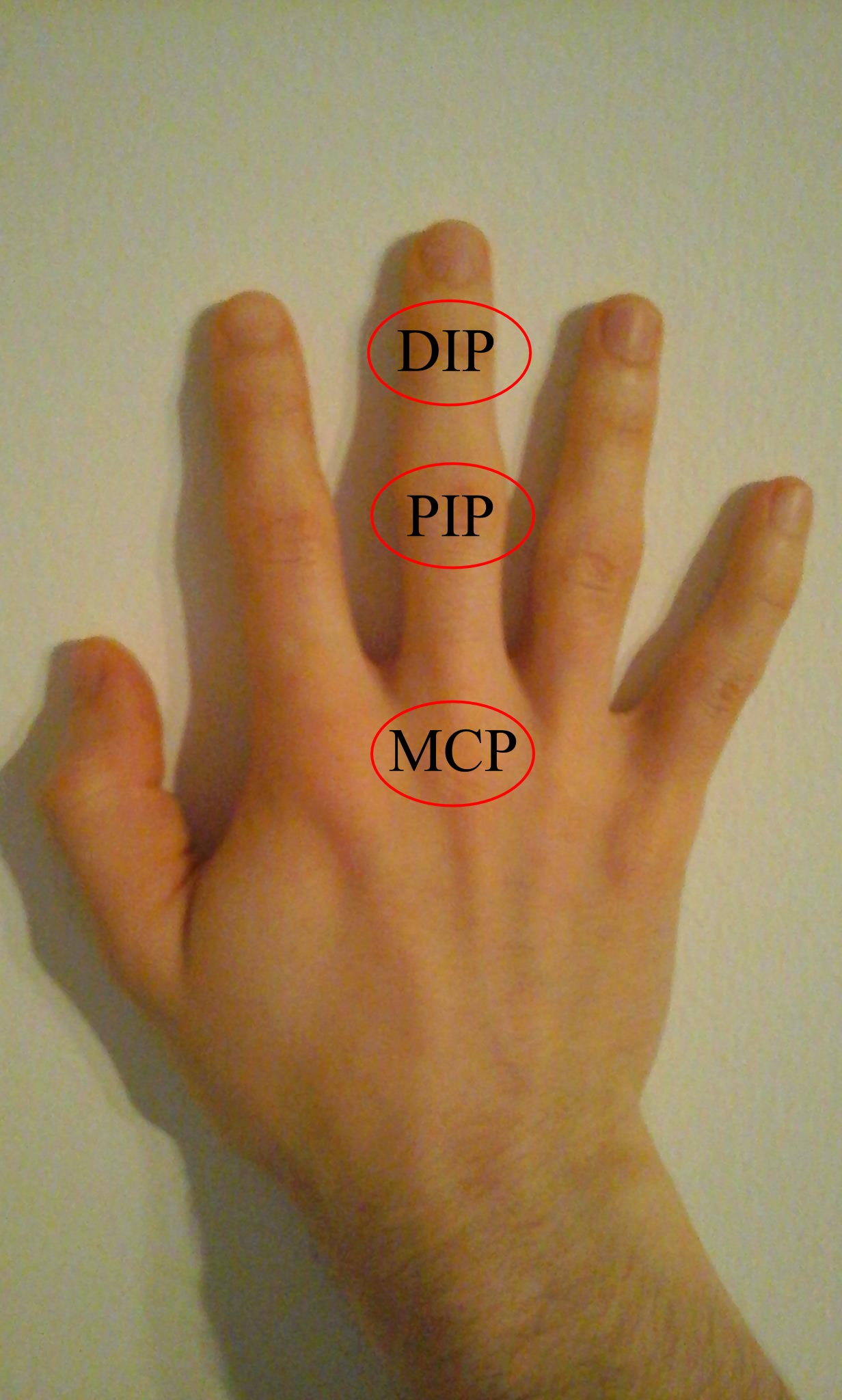 Görbült ujjak, fájó mozdulatok - HáziPatika