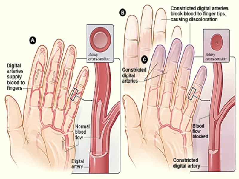dimexiddel tömörítse az ízületi fájdalmakat myacalcic az artrózis kezelésében