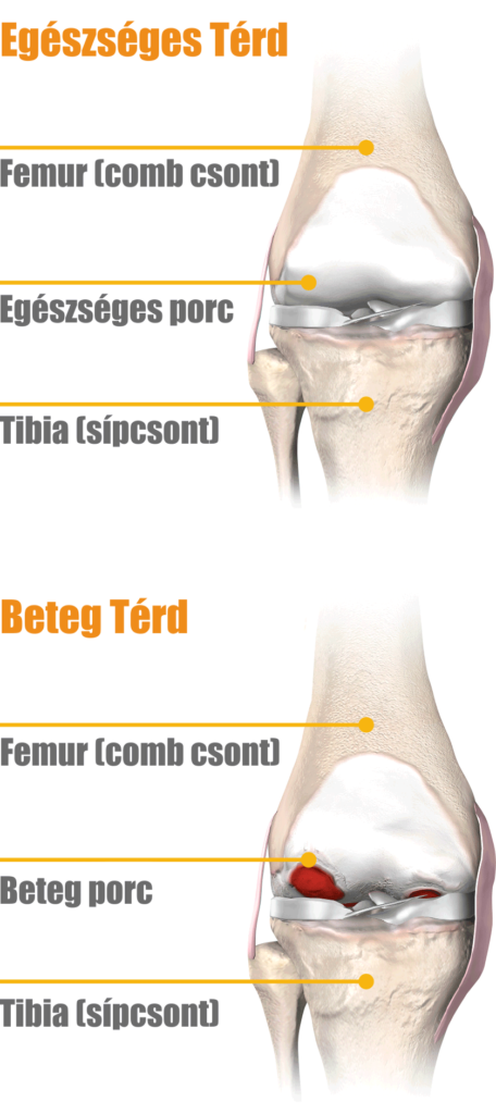 Térdfájdalom nem műtéti kezelése | 1000arcu.huán István ortopéd sebész praxisa