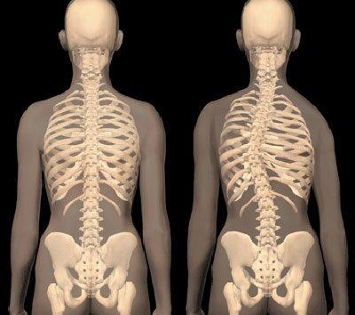 fájdalom a csípőízületben a skoliozis miatt