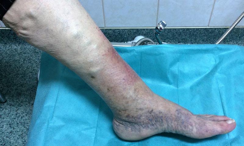 fájdalom a boka és az alsó lábban