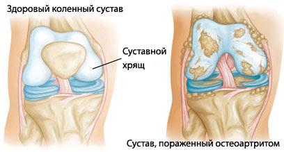 duzzadt lábak és ízületi fájdalmak vállidegkárosodás