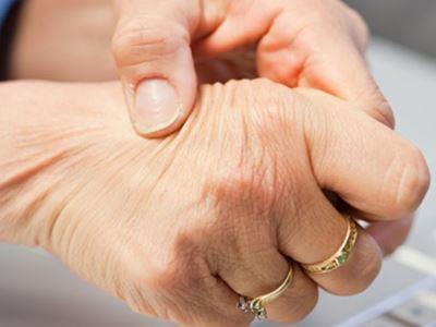 a kéz ízületei fájnak és megbuknak