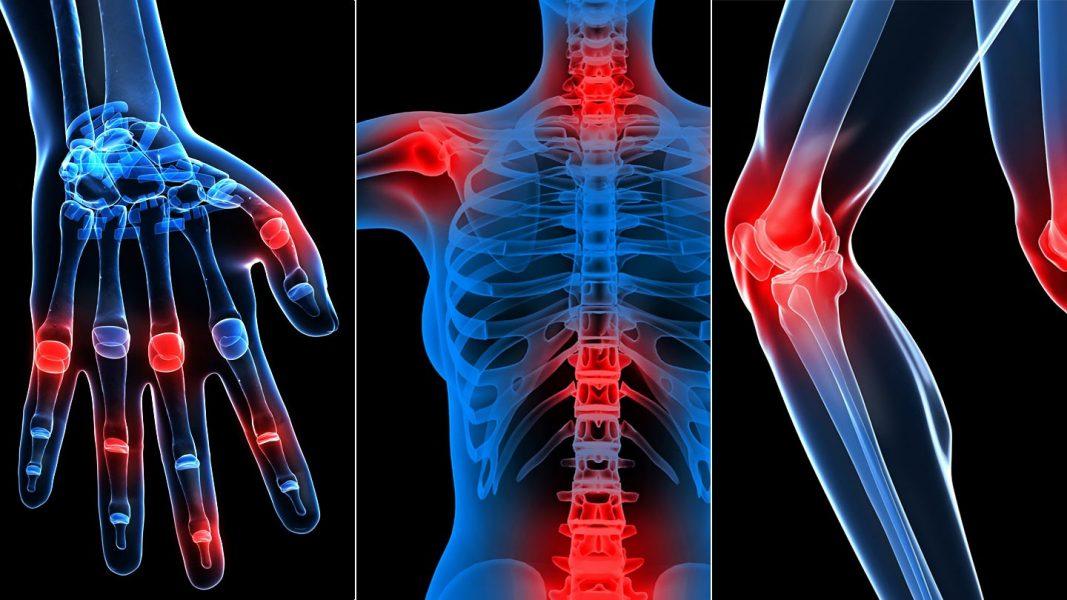 ízületi és csontfájdalomtól