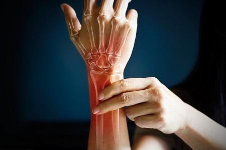 csontritkulás ízületi betegség)