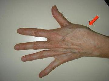 fáj a bal kéz könyökízülete