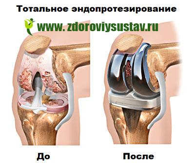 a térd gonartrosisának hatékony kezelése 2 fokkal ízületi és izomfájdalom 6 év