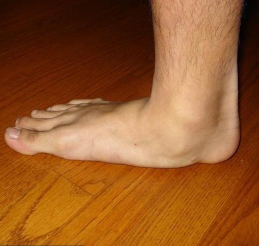 lapos láb fájdalom a térdben