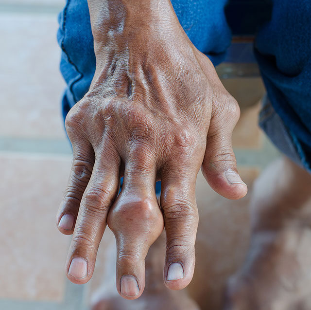 a láb kicsi ízületeinek ízületi gyulladás tünetei)