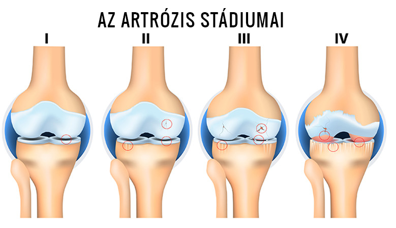 a térd artrózisával jár)