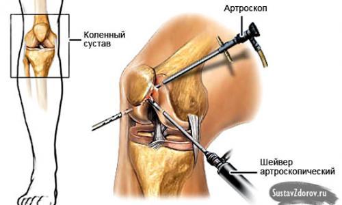 hajlító ízületek a térd keresztező ligamentuma károsodásának kezelése