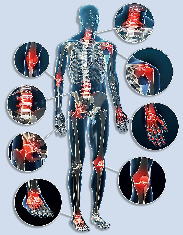 minden ízület és gerinc fáj, mit kell tenni)