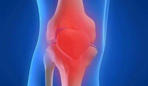 A synovitis teljes jellemzője: a betegség okai, tünetei, típusa és kezelése - Osteoarthritis