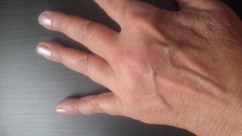 kék lámpa artrózis kezelésére