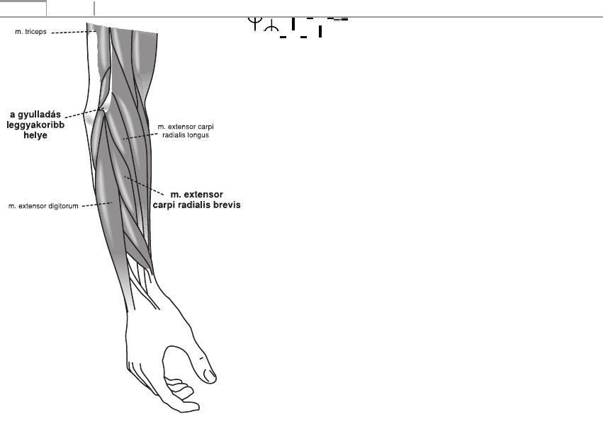 bokaízület periarthritis hogyan kezelhető kondroxid krém osteochondrozishoz