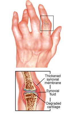 autoimmune disorder rheumatoid arthritis