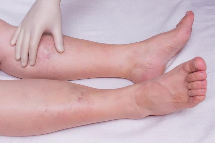 boka láb sérülése gerinc és ízületek onkológiai betegségei
