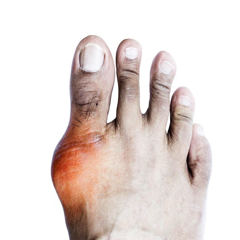 az artrózis felhalmozódása