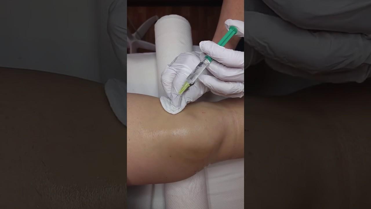 metacarpalis ízület voltaren emulgeálószer ízületi fájdalmakhoz