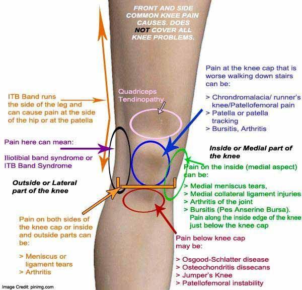 térdízületi serozus bursitis, hogyan kell kezelni)