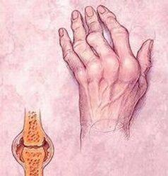 ha nem kezeli a rheumatoid arthritist, akkor mi lesz)