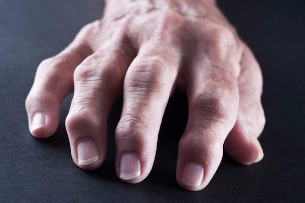 enyhíti a kéz ízületeinek gyulladását