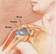 krónikus térdbursitis tünetei és kezelése