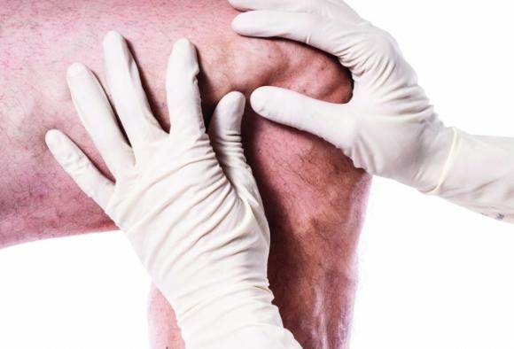 kötőszöveti betegségek áttekintése)